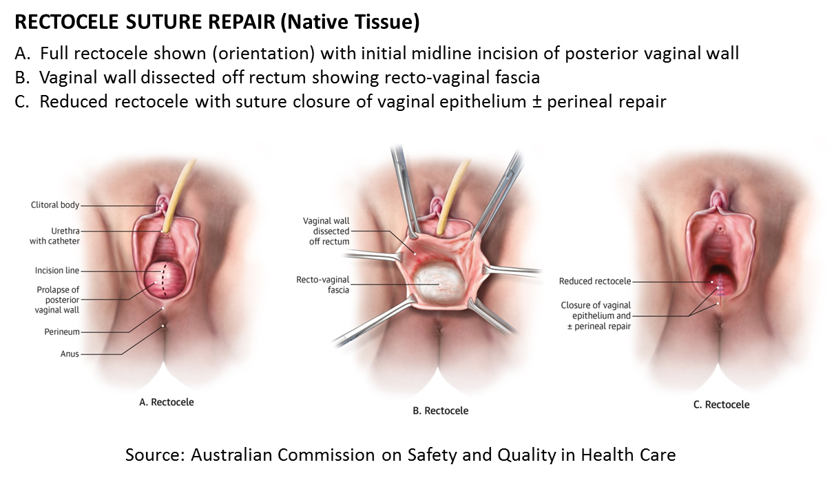 Suture repair (native tissue)