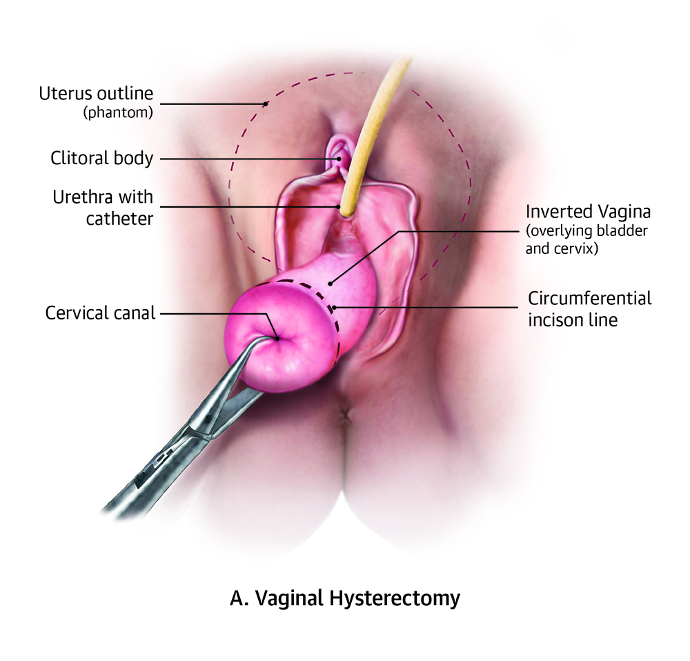 Vaginal hysterectomy with apical suspension